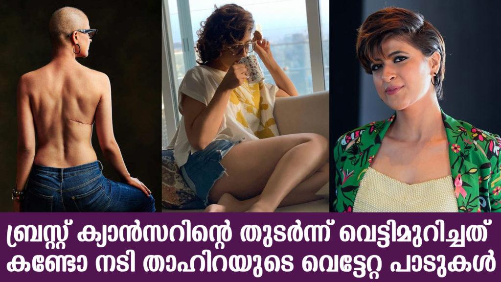 tahira cancer post copy